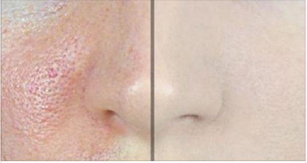 id e pour soin du vsage et acn comment faire dispara tre les pores avec seulement 1. Black Bedroom Furniture Sets. Home Design Ideas