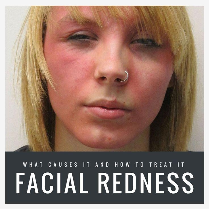 tutoriel sur les soins de la peau rougeur du visage causes et traitements beautifulwithbrai. Black Bedroom Furniture Sets. Home Design Ideas
